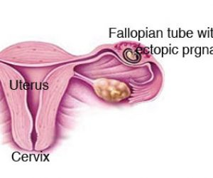 This image it is about Diagnosing and treating an ectopic pregnancy