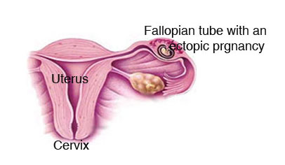 Diagnosing and treating an ectopic pregnancy 3