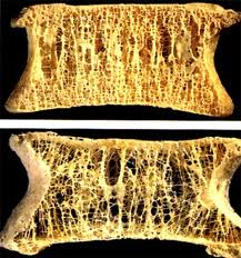 osteoporosis natural treatments