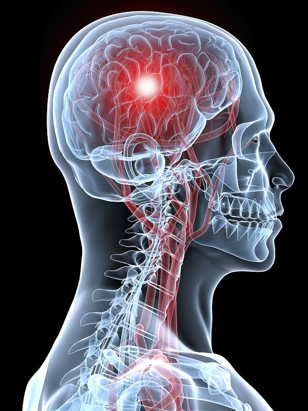 natural treatments for stroke