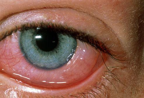 allergi conjunctivitis