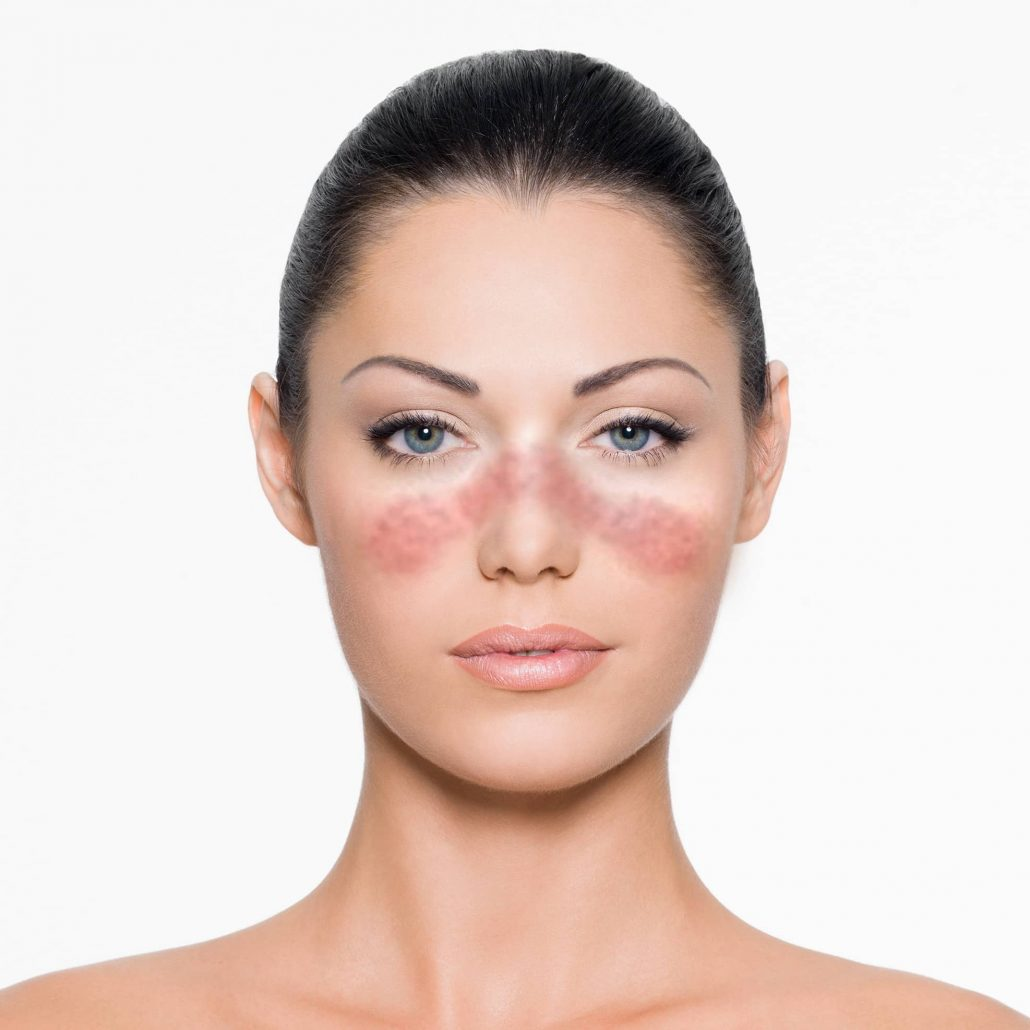 Which are the causes of lupus dissorder