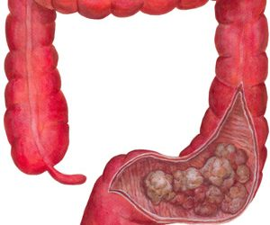 This image it is about Colon Cancer – Description, Causes, Symptoms and Treatment
