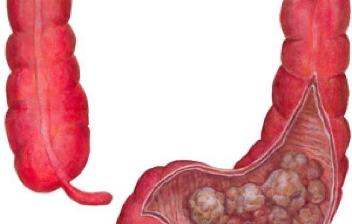 Colon Cancer - Description, Causes, Symptoms and Treatment 2