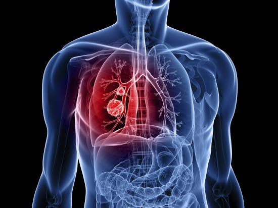 lung cancer natural treatment