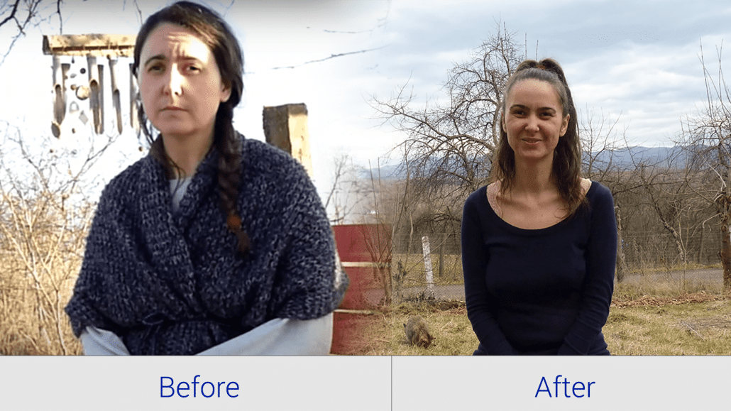 Before and after 35 days of Water Fasting
