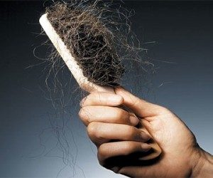 This image it is about Hair Loss – Causes and Natural Treatment