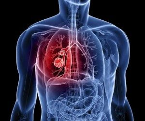 This image it is about Lung Cancer – Description, Causes, Symptoms and Treatment